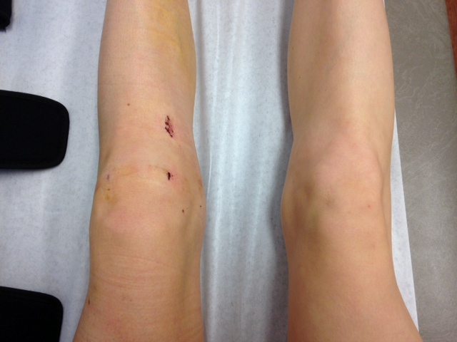 ACL Post-Surgery Week 2