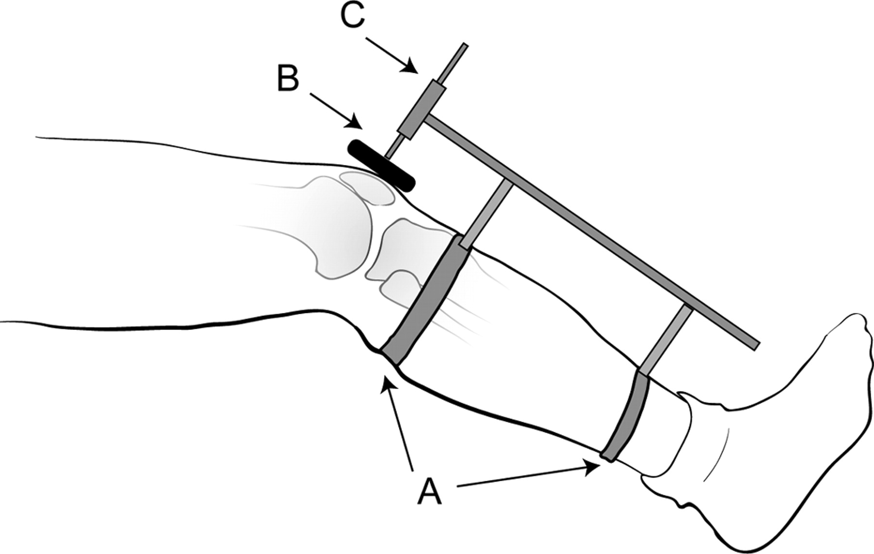 Stryker Knee Laxity Testing Instrument